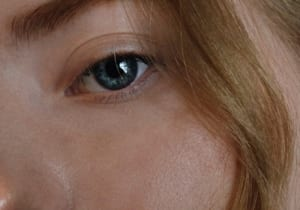 How to treat under eye circles